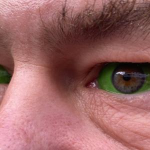 Eyeball-Tattoo / Scleral-Tattoo